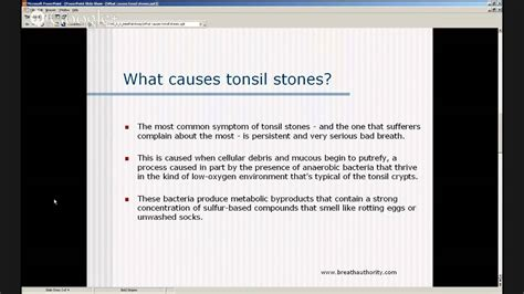 Tonsil Stones Causes - What Causes Tonsil Stones? - YouTube