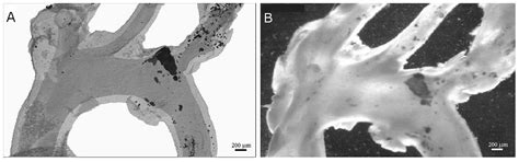 A new method for the quantification of aortic
