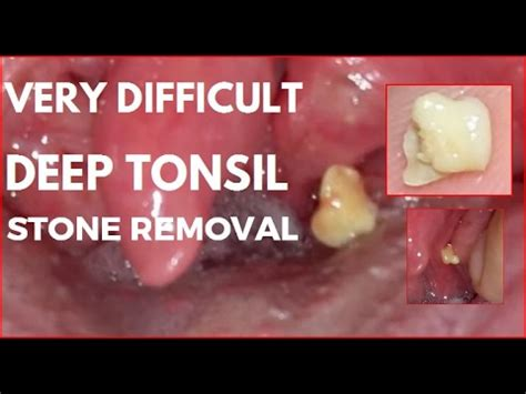 Very Difficult Deep Tonsil Stone Removal